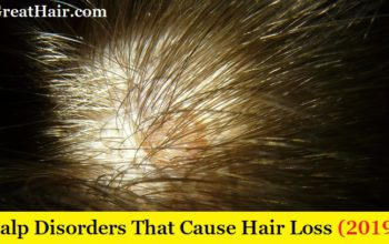 Top 7 Scalp Disorders That Cause Hair Loss (2019 Guide)
