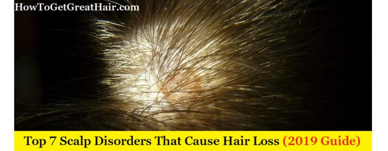 Top 7 Scalp Disorders That Cause Hair Loss (2020 Guide)