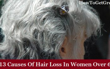 Top 13 Causes Of Hair Loss In Women Over 60