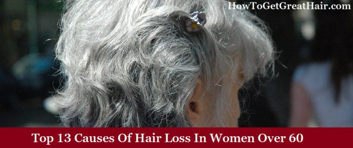 (Top 13) Causes Of Hair Loss In Women Over 60