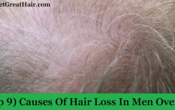(Top 9) Causes Of Hair Loss In Men Over 40