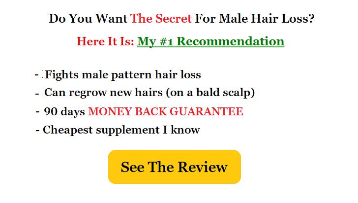best male hairloss supplement